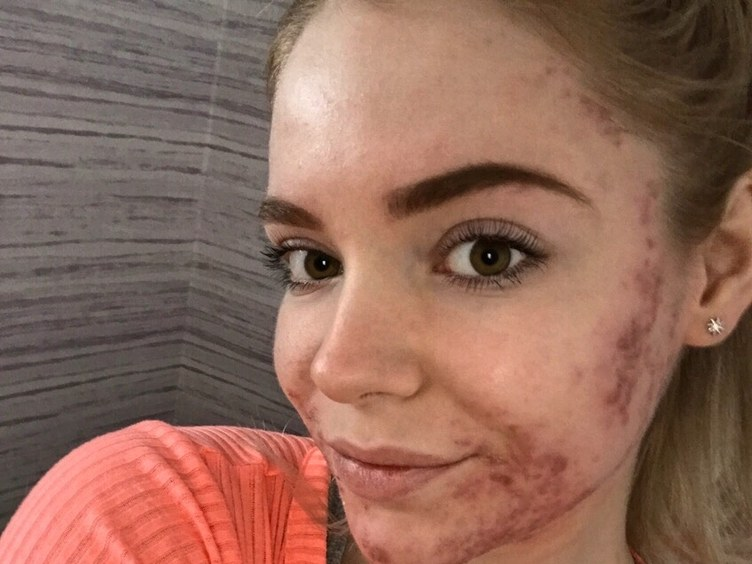 This Beauty Pageant Contestant's Acne Kept Her From Competing.