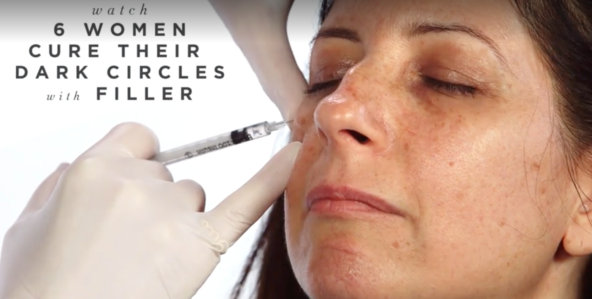 Everything You Need To Know About Undereye Filler For Dark Circles